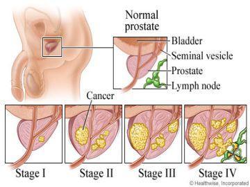 Carcinoma of Prostate
