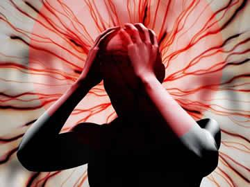 Migraine (severe Headache with nausea)